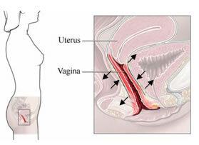 Se muestra la posición del útero